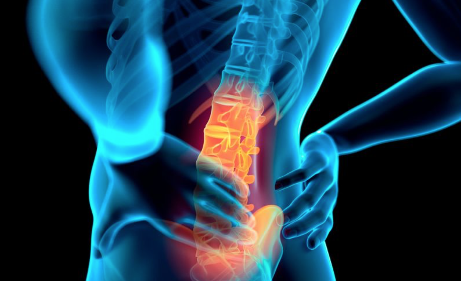 Back Pain - Bilateral Sciatica
